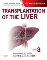 Transplantation of the Liver Expert Consult